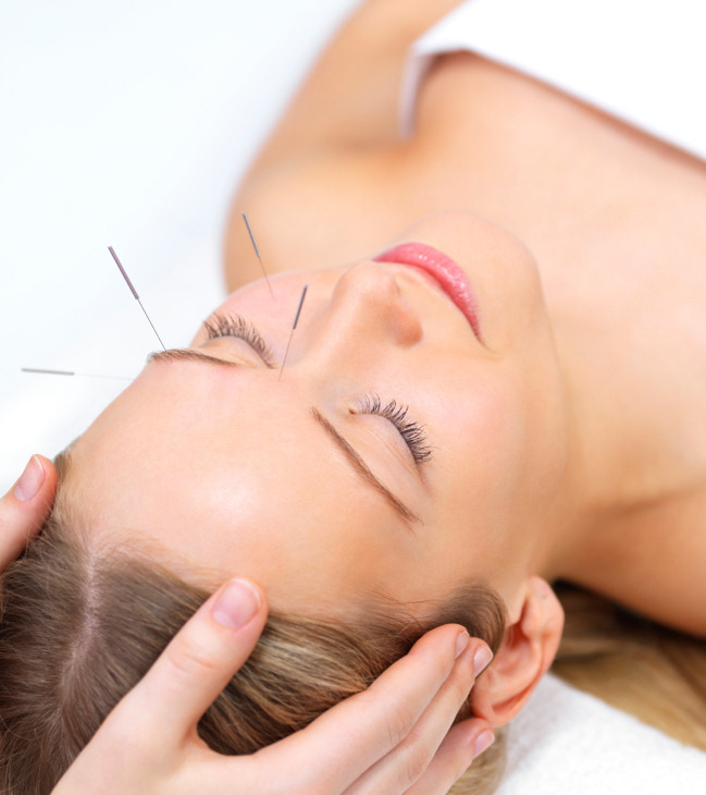 Bellevue Acupuncture